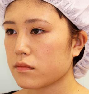 エラ削り手術の症例写真1|術前|斜め