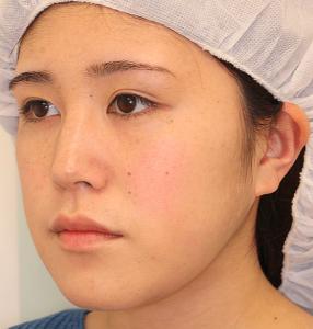 エラ削り手術の症例写真1|3ヶ月後|斜め