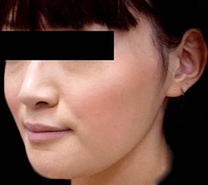 エラ削り手術の症例写真4|2ヶ月半後|斜め