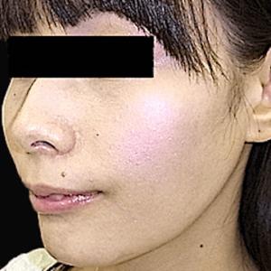 エラ削り手術の症例写真5|2ヶ月後|斜め