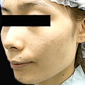エラ削り手術の症例写真5|術前|斜め