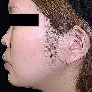 エラ削り手術の症例写真3|2ヶ月後|側面