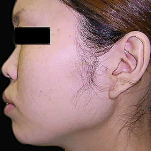 エラ削り手術の症例写真3|術前|側面