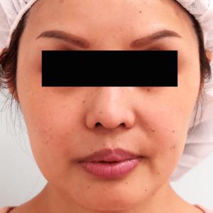 頬骨削り手術の症例写真1|3ヶ月後|正面