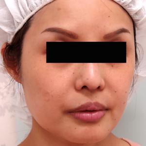 頬骨削り手術の症例写真1|3ヶ月後|斜め