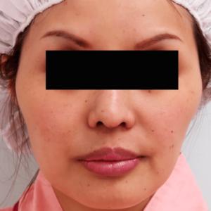 頬骨削り手術の症例写真1|術前|正面