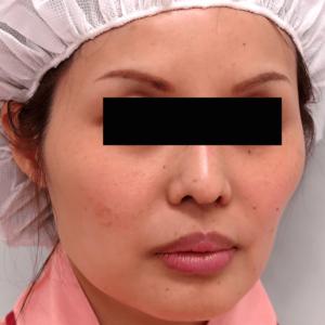 頬骨削り手術の症例写真1|術前|斜め