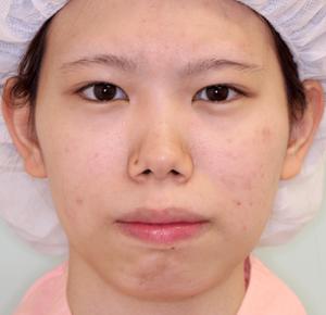 上下顎セットバック症例写真|術前・正面