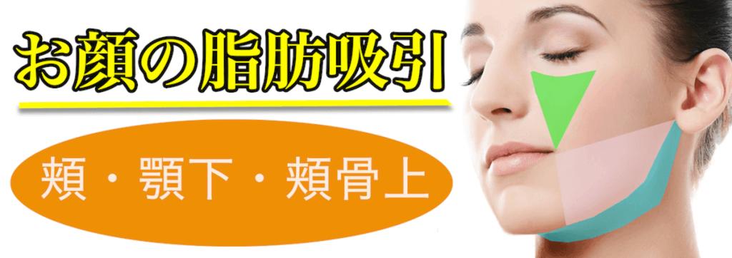 「お顔の脂肪吸引」のバナー
